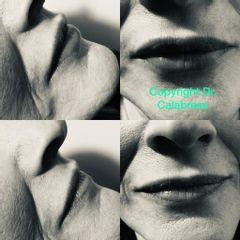 Filler labbra - Dott.sa Sarah Calabrese
