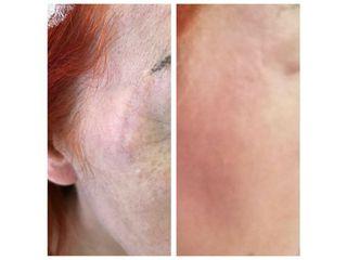 Cicatrici prima e dopo