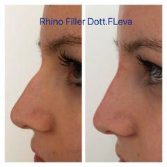 Rinofiller - Dott. Francesco Leva