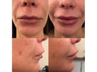 Lip lift prima e dopo
