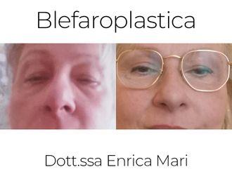 Blefaroplastica non chirurgica-791491
