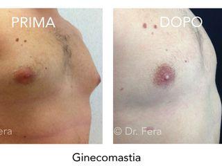 Ginecomastia prima dopo