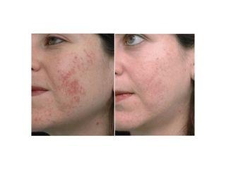 acne prima dopo