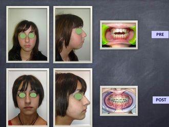Chirurgia Maxillo facciale-750244