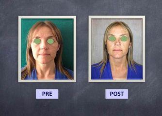 botox prima dopo