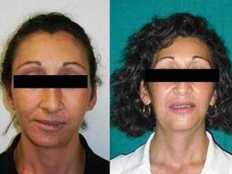 Chirurgia Maxillo facciale-751749