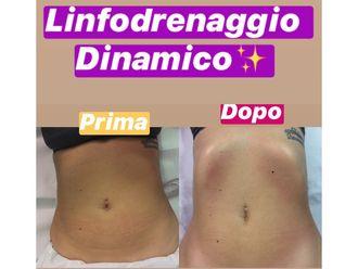 Linfodrenaggio-769654