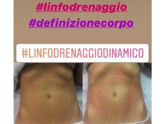 Linfodrenaggio-769657