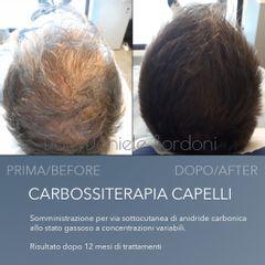 Carbossiterapia capelli Dott. Daniele Bordoni