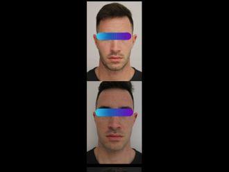 Chirurgia Maxillo facciale-795365