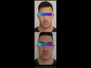 Aumento profilo mandibolare - Physiomed