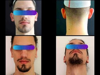Otoplastica - Physiomed