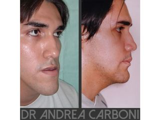 Chirurgia Maxillo facciale prima e dopo