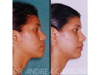 Chirurgia Maxillo facciale-771345