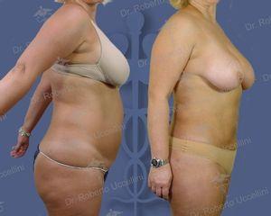Liposcultura addominale prima e dopo