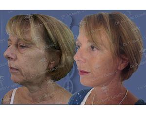 Lifting e blefaroplastica prima e dopo