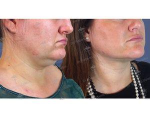 Liposcultura prima e dopo
