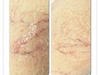 eliminazione capillari prima dopo
