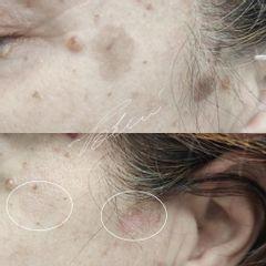 Macchie della pelle prima dopo