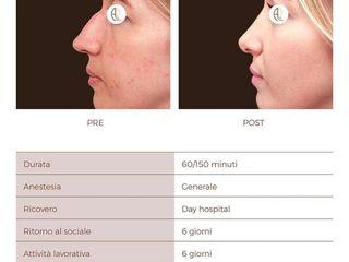 Rinoplastica pre e post trattamento