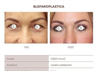 Blefaroplastica pre e post trattamento