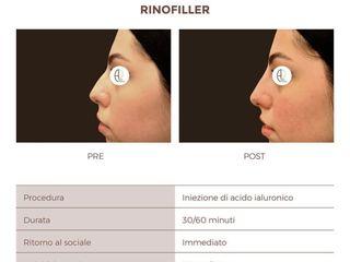 Rinofiller prima e dopo il trattamento