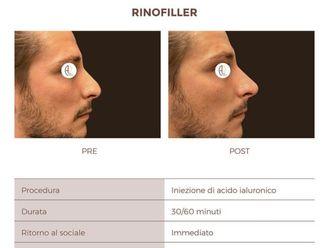 Rinofiller-765770