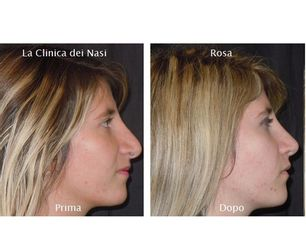 Rinoplastica Secondaria Rosa