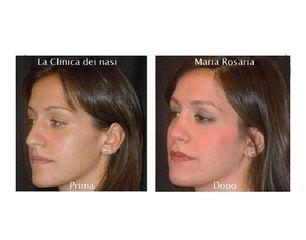 Rinoplastica Maria Rosaria naso con gibbo