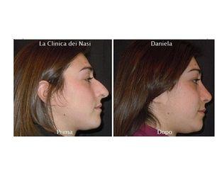 Rinoplastica Daniela prima e dopo