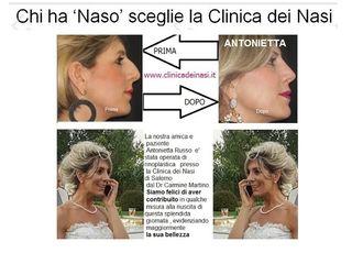 Rinoplastica Antonietta