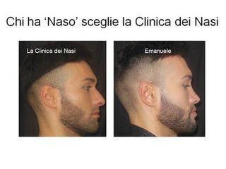 Rinoplastica Emanuele