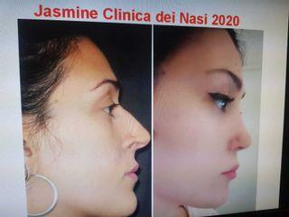 Rinoplastica - La Clinica Dei Nasi