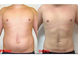 Liposuzione e liposcultura