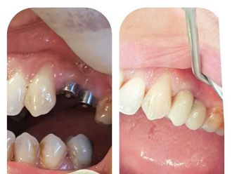 Dentisti-766310