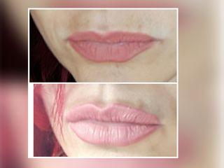 lip filler prima e dopo