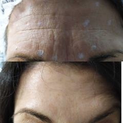 Botulino - Bio-Lifting Studio Medico Fronzi della Dott.ssa Stefania Fronzi