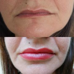 Filler labbra - Bio-Lifting Studio Medico Fronzi della Dott.ssa Stefania Fronzi