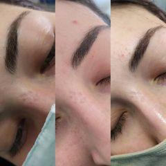 Trattamento cicatrici - Bio-Lifting Studio Medico Fronzi della Dott.ssa Stefania Fronzi