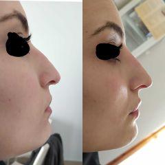 Armonizzazione del profilo, rinofiller e filler labbra - Dott.ssa Stefania Fronzi