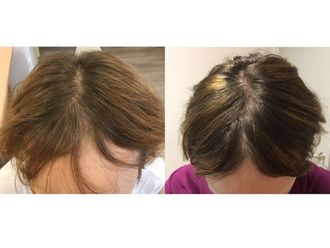 Alopecia-762199
