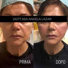 Filler labbra - Dott.ssa Angela Lazar