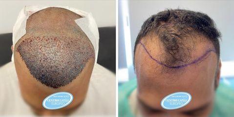 Trapianto capelli - Studio Medico Adigrat