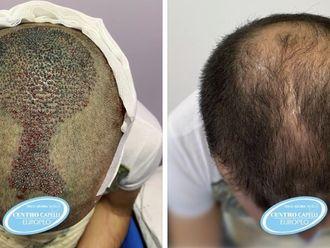 Trapianto capelli-773467