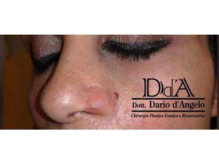 Ricostruzione narice - Dott. Dario D'angelo