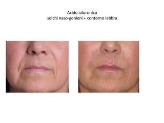 trattamento acido ialuronico pre e post