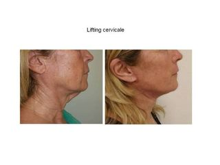 Lifting cervicale prima e dopo