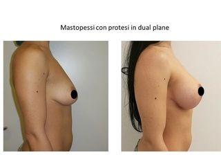 Mastopessi