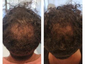 Trapianto capelli-793316