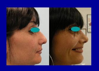 Chirurgia del naso pre e post